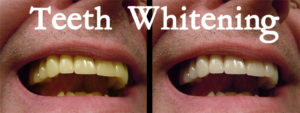 before & after teeth whitening photos of a smile