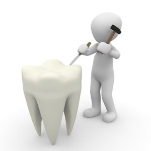 3d man chipping a tooth