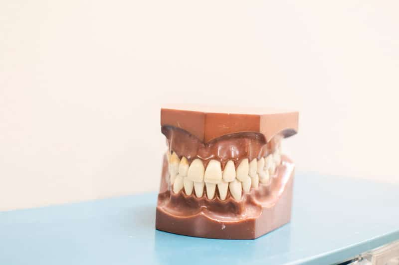 teeth mold on desk