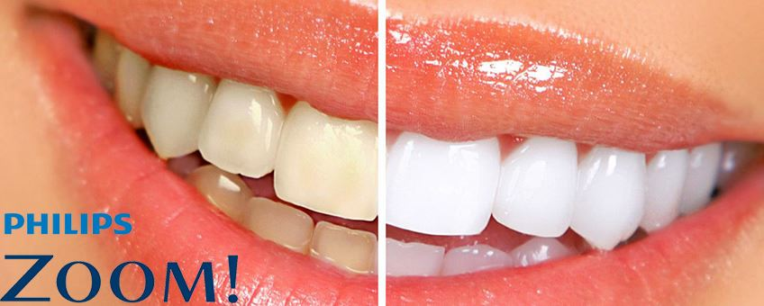 philips zoom whitening before/after teeth