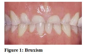 picture of teeth grinding